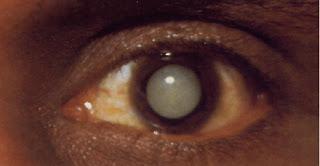 real cataract 1